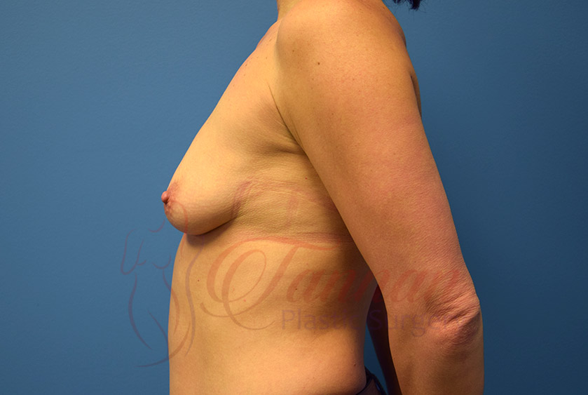 Breast-Augmentation-Before-0302-Tannan-Plastic-Surgery