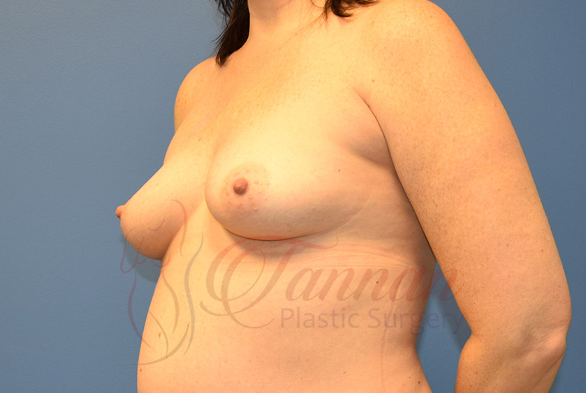 Breast-Augmentation-Before-0401-Tannan-Plastic-Surgery