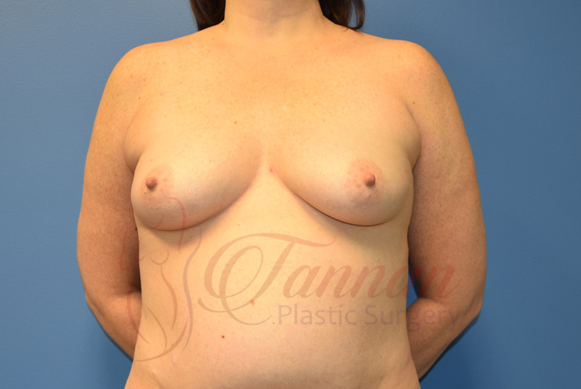 Breast-Augmentation-Before-0403-Tannan-Plastic-Surgery