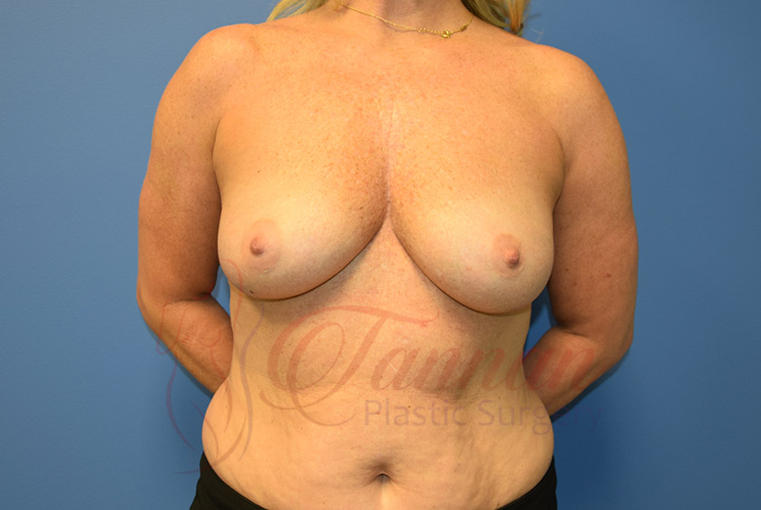 Breast-Augmentation-Before-0501-Tannan-Plastic-Surgery