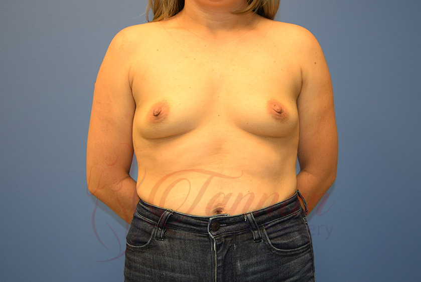 Breast-Augmentation-Before-0601-Tannan-Plastic-Surgery