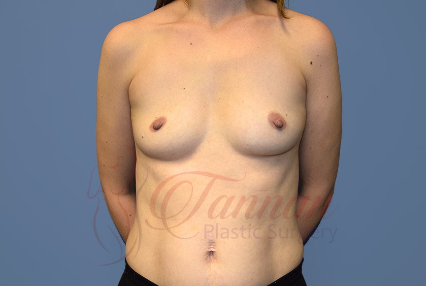 Breast-Augmentation-Before-0801-Tannan-Plastic-Surgery