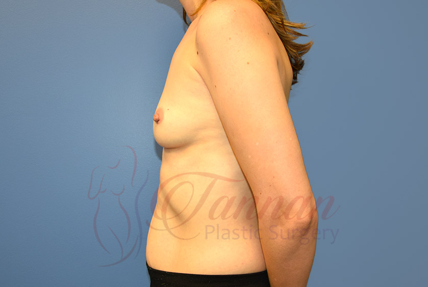 Breast-Augmentation-Before-0802-Tannan-Plastic-Surgery