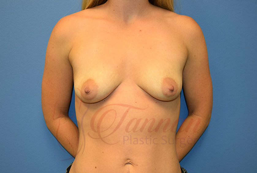 Breast-Augmentation-Before-0901-Tannan-Plastic-Surgery