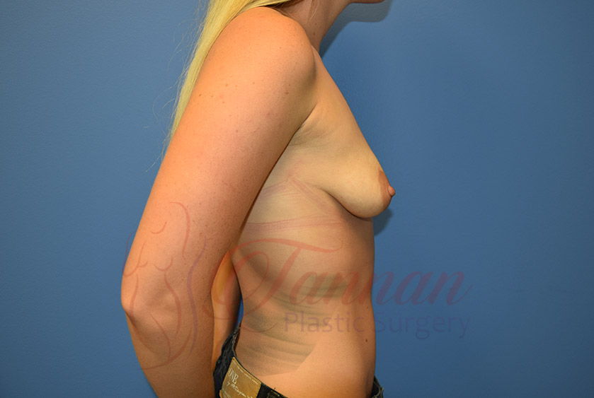 Breast-Augmentation-Before-0902-Tannan-Plastic-Surgery
