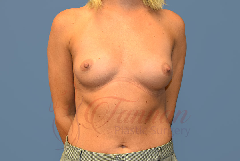 Breast-Augmentation-Before-1001-Tannan-Plastic-Surgery