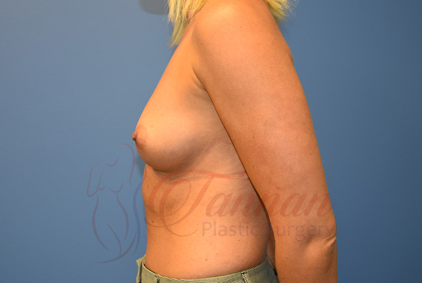 Breast-Augmentation-Before-1002-Tannan-Plastic-Surgery (1)