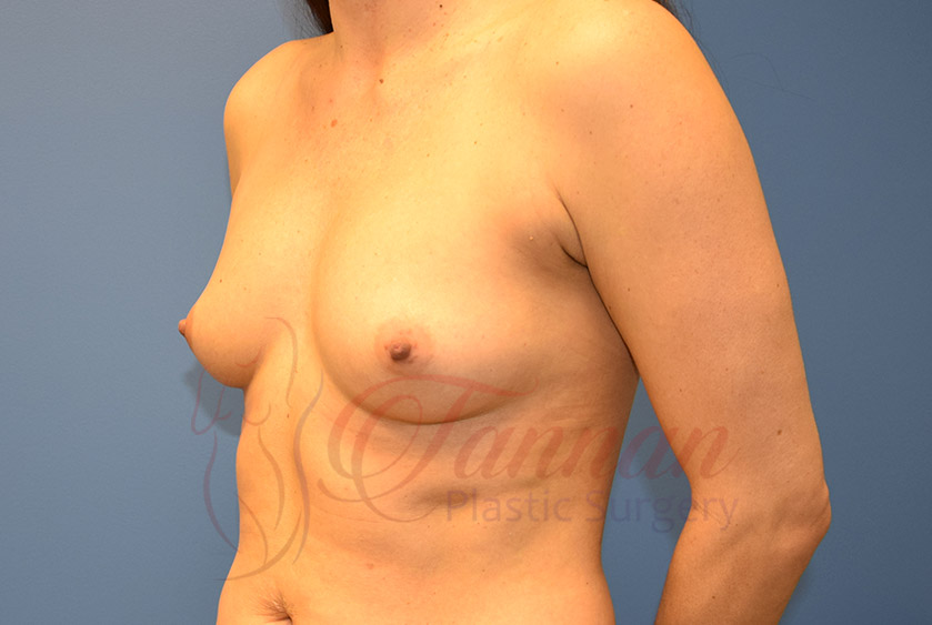 Breast-Augmentation-Before-1103-Tannan-Plastic-Surgery