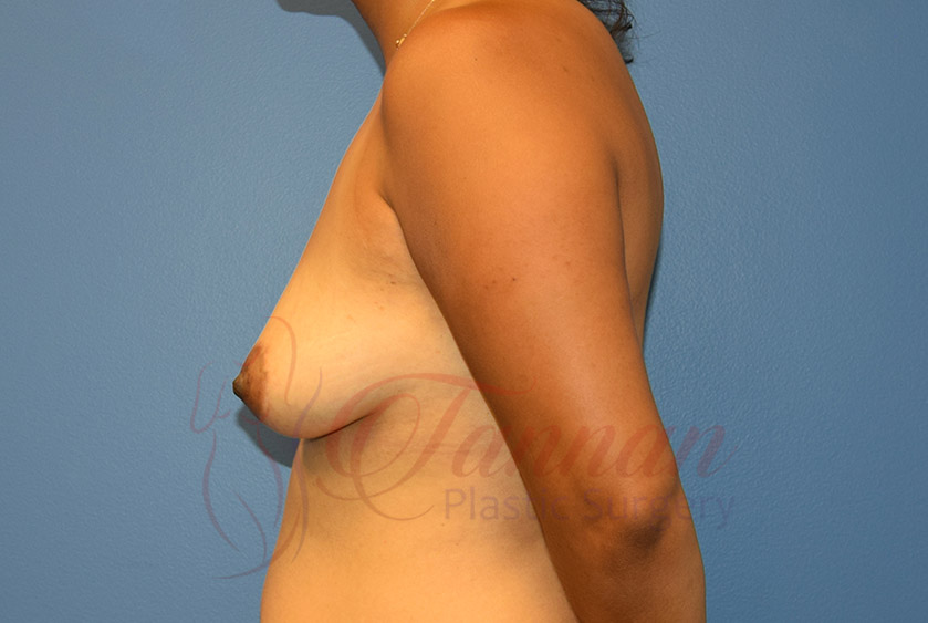 Breast-Augmentation-Before-1202-Tannan-Plastic-Surgery