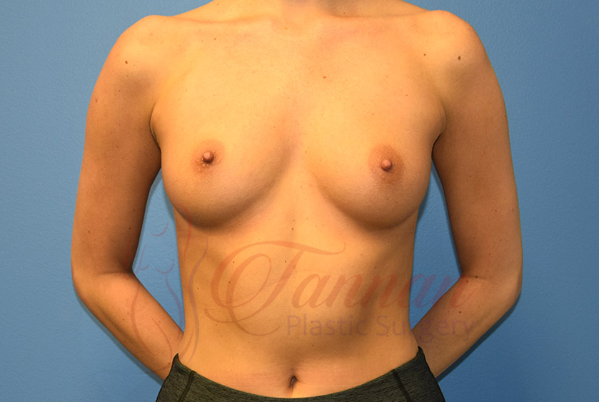 Breast-Augmentation-Before-1301-Tannan-Plastic-Surgery
