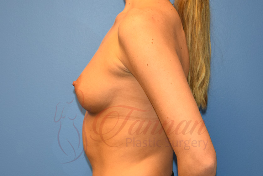 Breast-Augmentation-Before-1302-Tannan-Plastic-Surgery