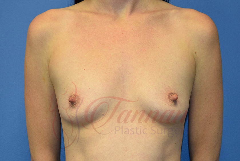 Breast-Augmentation-Before-1401-Tannan-Plastic-Surgery