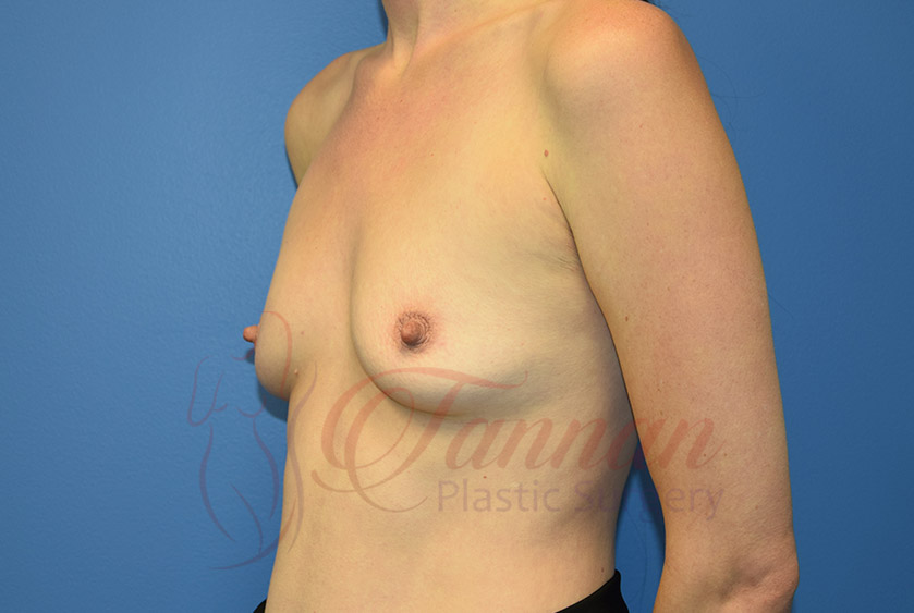 Breast-Augmentation-Before-1402-Tannan-Plastic-Surgery