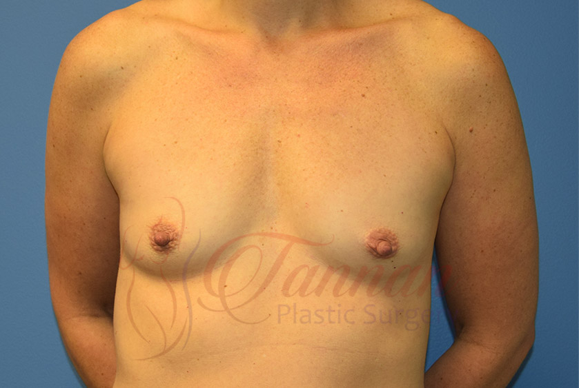 Breast-Augmentation-Before-1501-Tannan-Plastic-Surgery