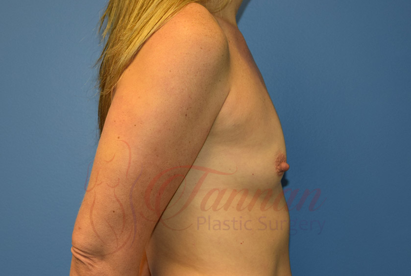 Breast-Augmentation-Before-1502-Tannan-Plastic-Surgery
