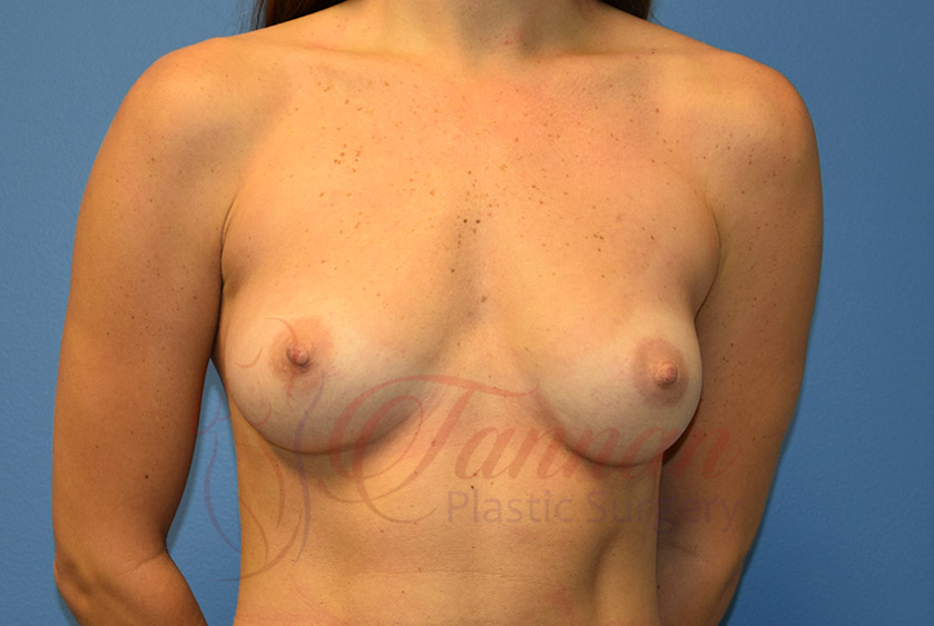 Breast-Augmentation-Before-1601-Tannan-Plastic-Surgery