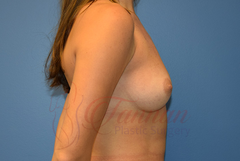 Breast-Augmentation-Before-1602-Tannan-Plastic-Surgery