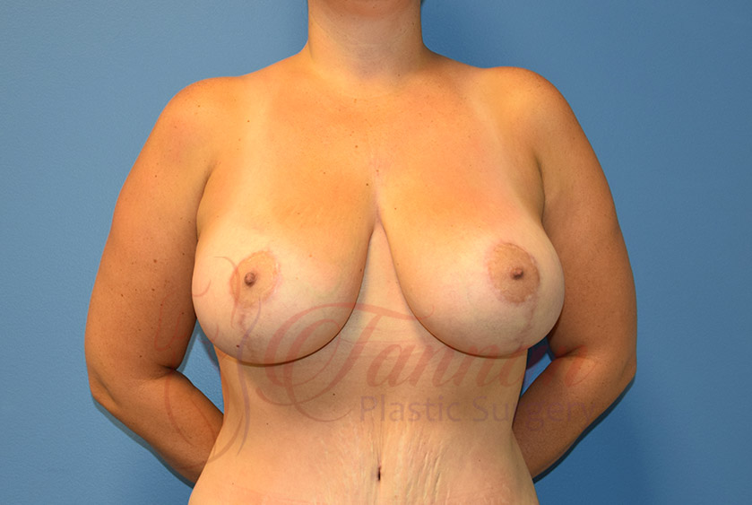 Breast-Lift-After-0101-Tannan-Plastic-Surgery