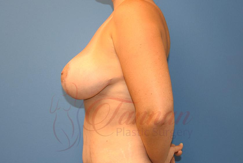 Breast-Lift-After-0102-Tannan-Plastic-Surgery