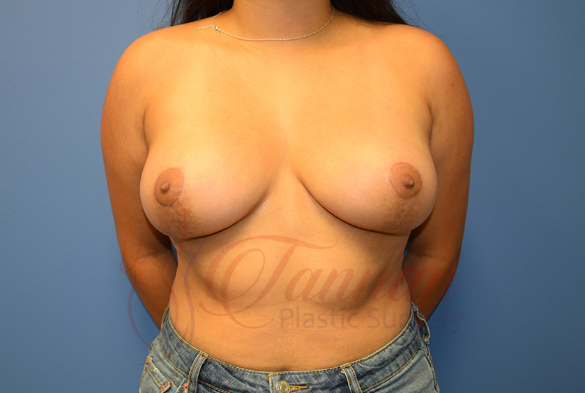Breast-Lift-After-0201-Tannan-Plastic-Surgery