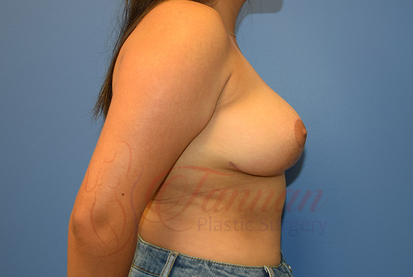 Breast-Lift-After-0202-Tannan-Plastic-Surgery