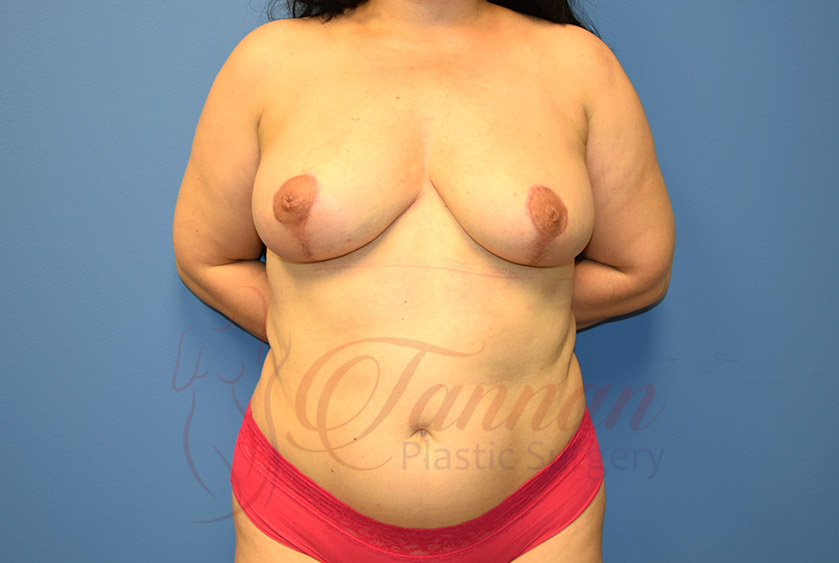 Breast-Lift-After-0301-Tannan-Plastic-Surgery