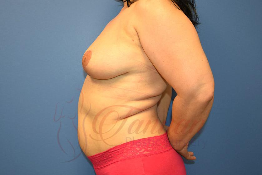 Breast-Lift-After-0302-Tannan-Plastic-Surgery