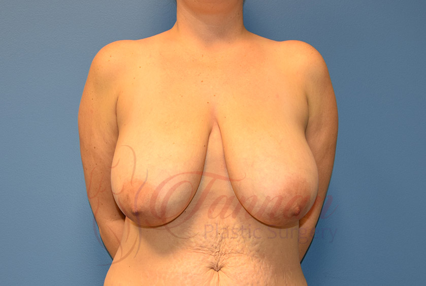 Breast-Lift-Before-0101-Tannan-Plastic-Surgery