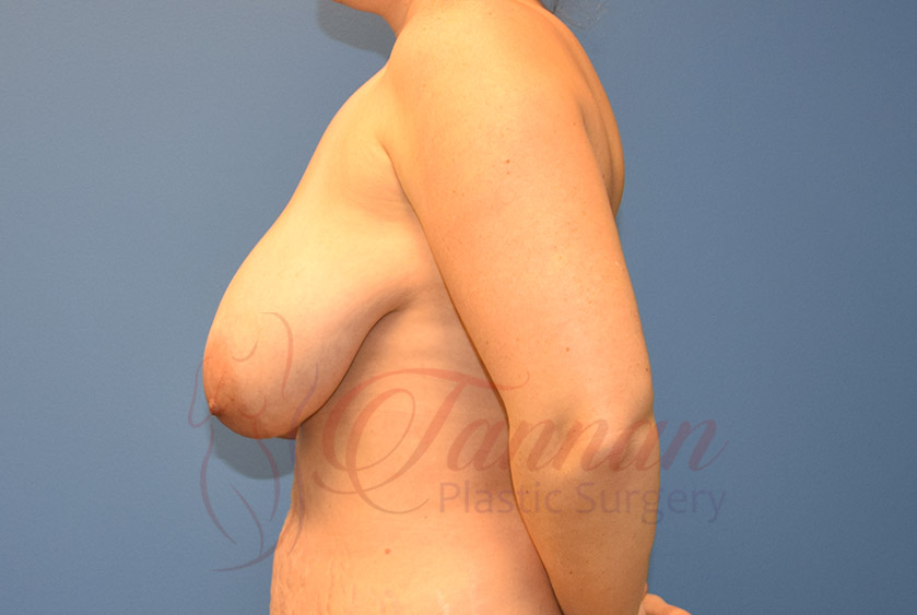 Breast-Lift-Before-0102-Tannan-Plastic-Surgery