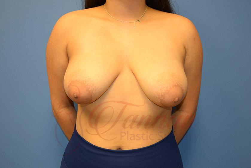 Breast-Lift-Before-0201-Tannan-Plastic-Surgery