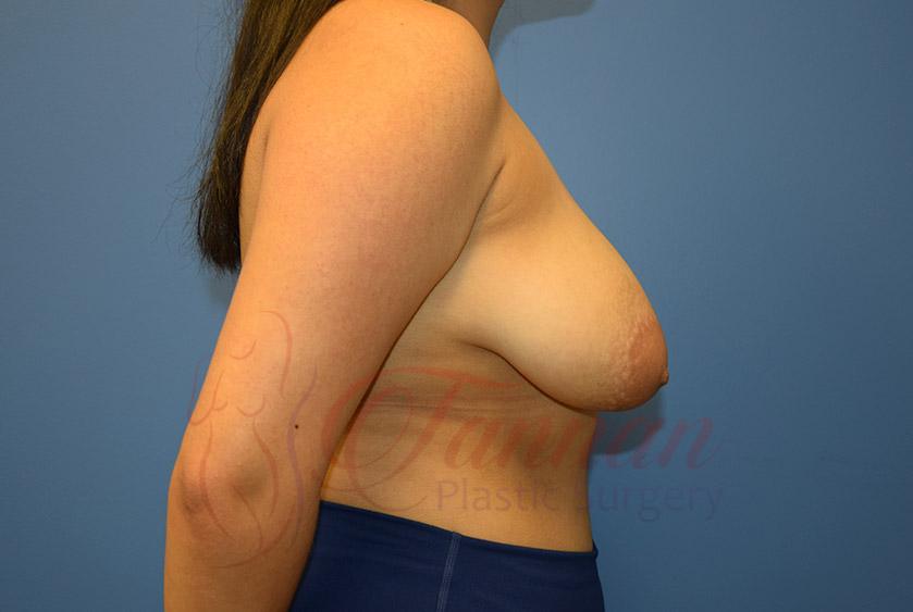 Breast-Lift-Before-0202-Tannan-Plastic-Surgery