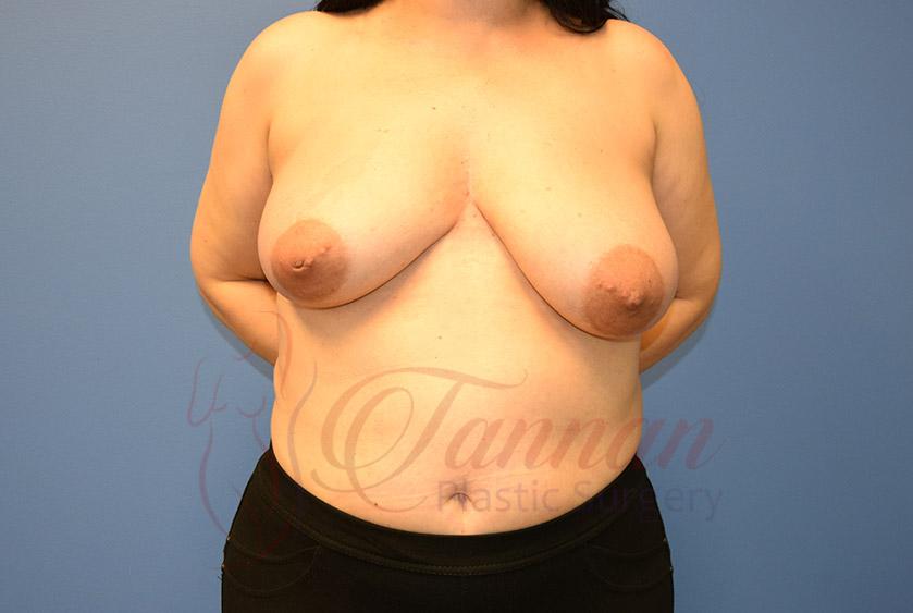 Breast-Lift-Before-0301-Tannan-Plastic-Surgery