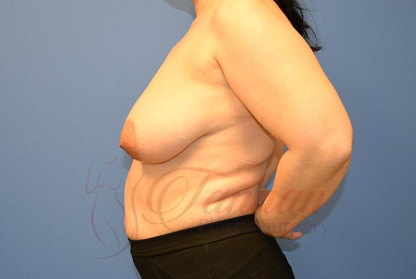 Breast-Lift-Before-0302-Tannan-Plastic-Surgery