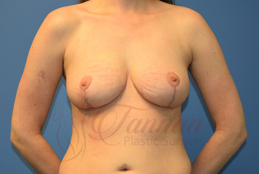 Breast-Reduction-After-0101-Tannan-Plastic-Surgery