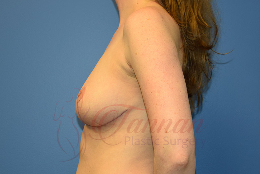 Breast-Reduction-After-0102-Tannan-Plastic-Surgery