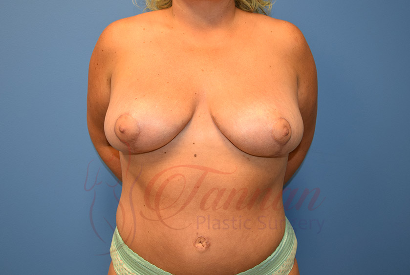 Breast-Reduction-After-0201-Tannan-Plastic-Surgery