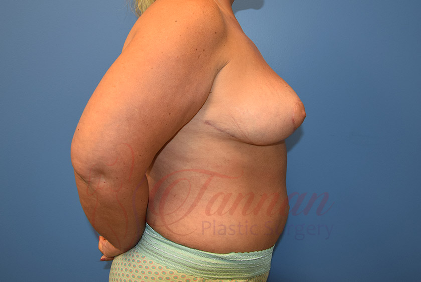 Breast-Reduction-After-0202-Tannan-Plastic-Surgery