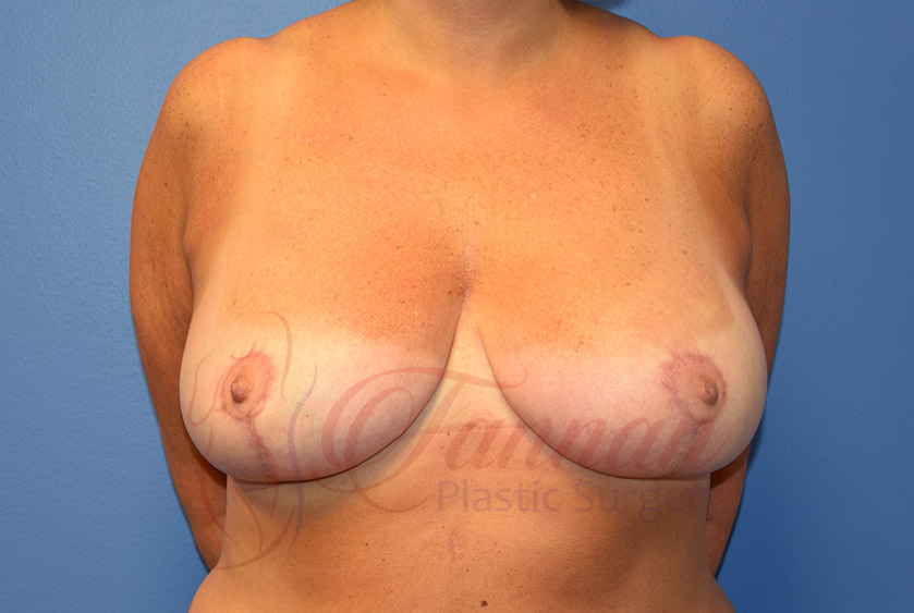 Breast-Reduction-After-0301-Tannan-Plastic-Surgery