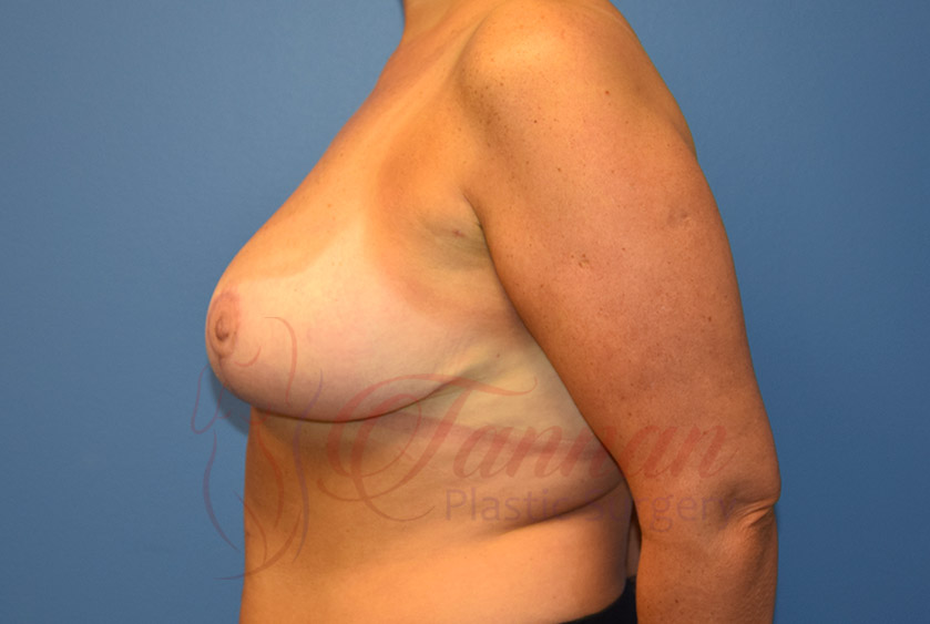 Breast-Reduction-After-0302-Tannan-Plastic-Surgery