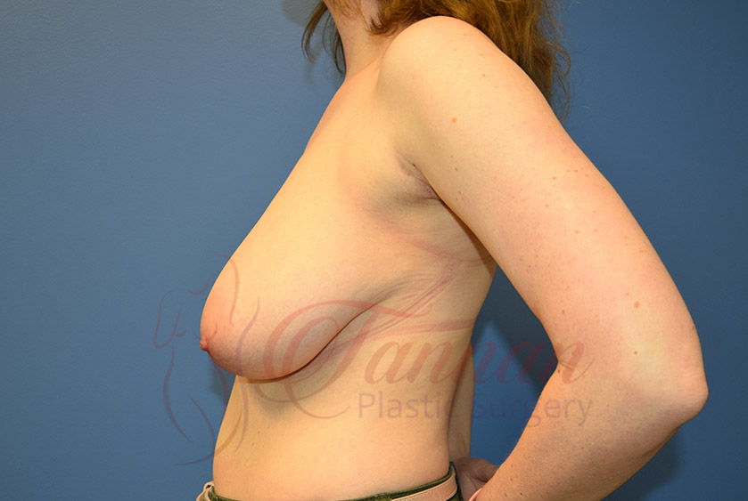Breast-Reduction-Before-0102-Tannan-Plastic-Surgery