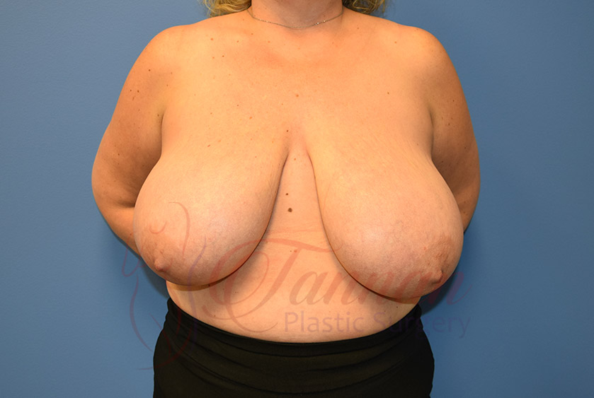 Breast-Reduction-Before-0201-Tannan-Plastic-Surgery