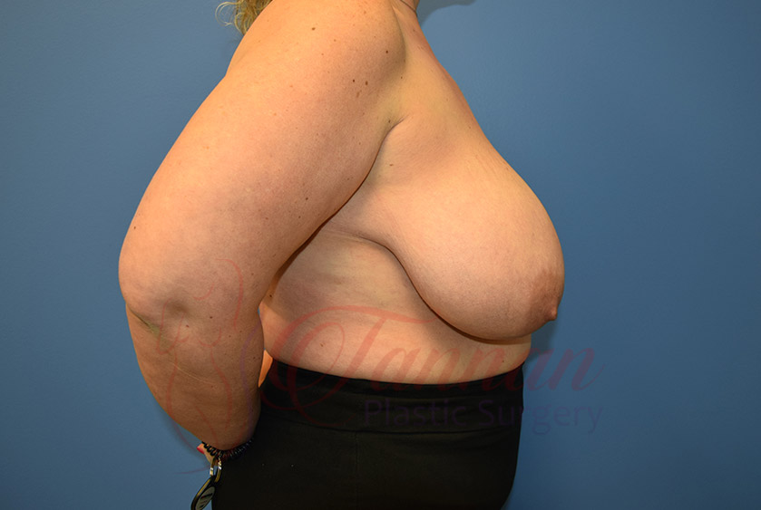 Breast-Reduction-Before-0202-Tannan-Plastic-Surgery