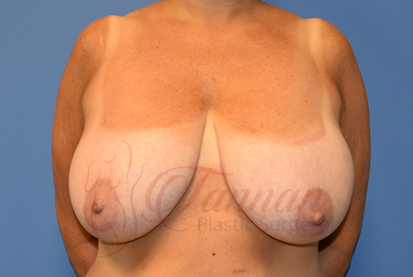 Breast-Reduction-Before-0301-Tannan-Plastic-Surgery