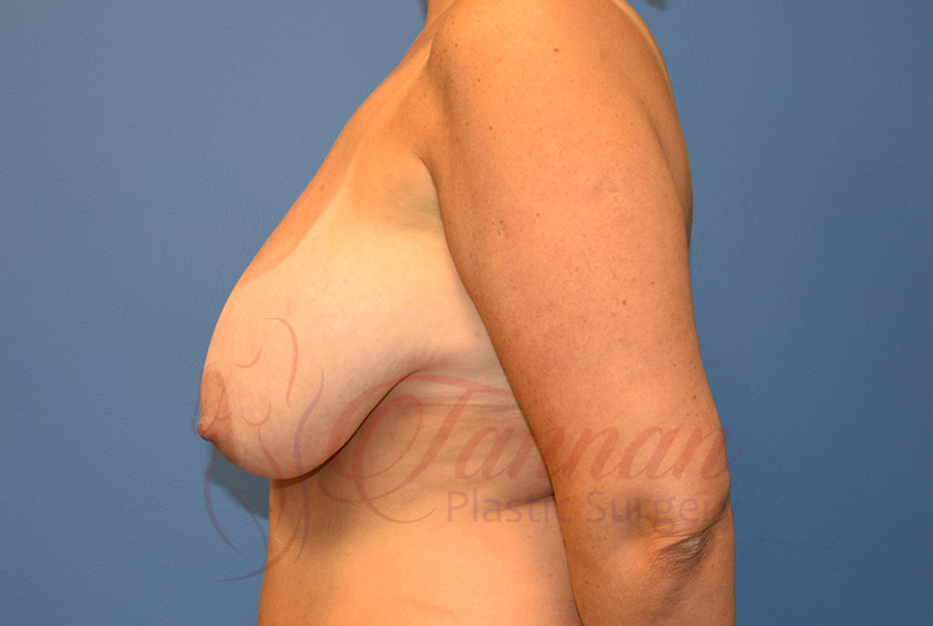 Breast-Reduction-Before-0302-Tannan-Plastic-Surgery