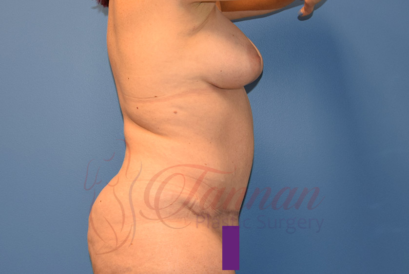 Mommy-Makeover-After-0102-Tannan-Plastic-Surgery