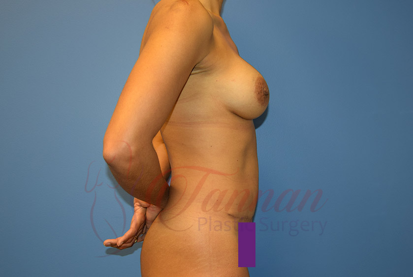 Mommy-Makeover-After-0402-Tannan-Plastic-Surgery