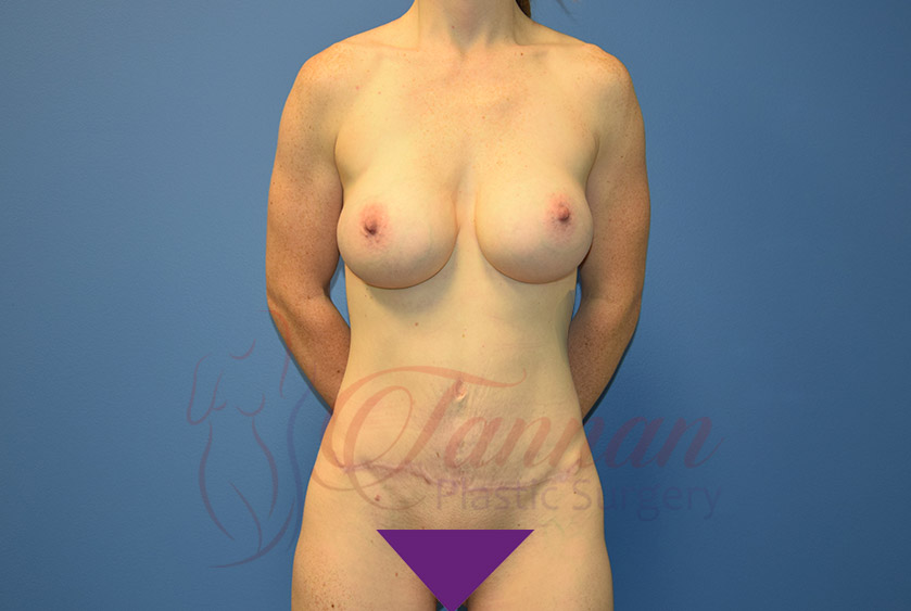 Mommy-Makeover-After-0501-Tannan-Plastic-Surgery