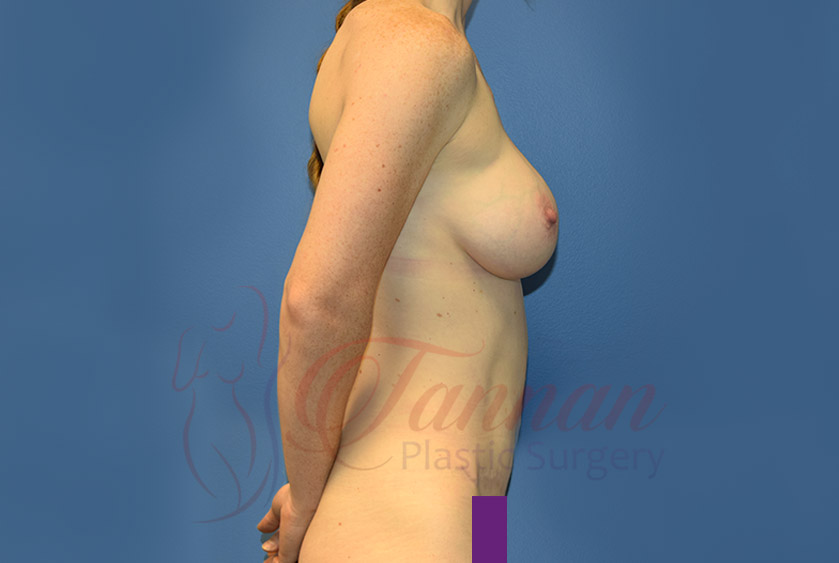 Mommy-Makeover-After-0502-Tannan-Plastic-Surgery
