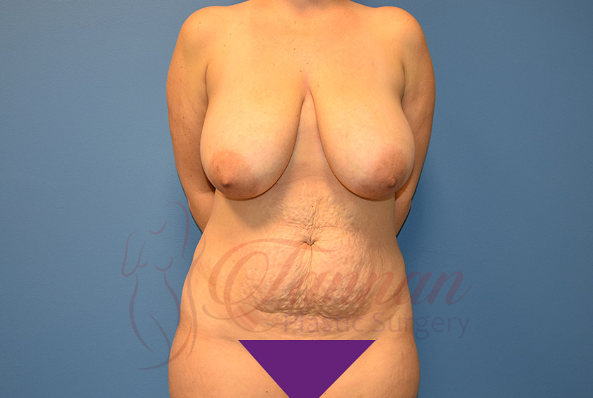 Mommy-Makeover-Before-0301-Tannan-Plastic-Surgery