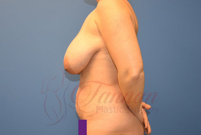 Mommy-Makeover-Before-0302-Tannan-Plastic-Surgery